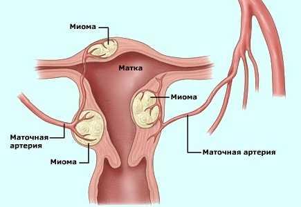 Молочница при грудном вскармливании: лечение, симптомы